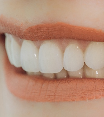 Closeup of smile with dental bridges in Center